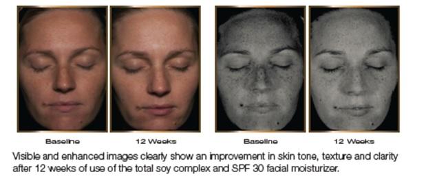 Étude clinique sur le teint et la texture de la peau 4