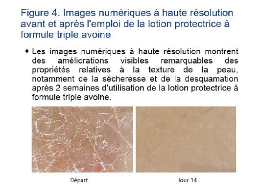 lotion à l'avoine pour la peau sèche qui démange 4