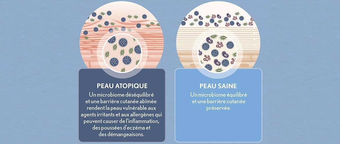 Recherche d'AVEENO® sur le microbiome cutané